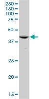 H00000095-B01P - Aminoacylase-1 / ACY1