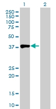 H00000095-D01P - Aminoacylase-1 / ACY1