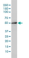 H00000095-M01 - Aminoacylase-1 / ACY1