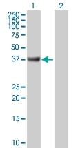 H00000100-D01P - Adenosine deaminase