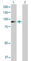 H00000118-D01P - Alpha-Adducin / ADD1