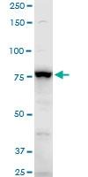 H00000120-A01 - Gamma-adducin (ADD3)