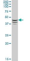 H00000123-B01P - Adipophilin / ADFP