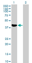 H00000126-B01P - Alcohol dehydrogenase 1C (ADH3)