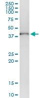 H00000126-D01 - Alcohol dehydrogenase 1C (ADH3)