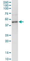 H00000127-D01 - Alcohol dehydrogenase 4 / ADH4