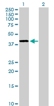 H00000127-D01P - Alcohol dehydrogenase 4 / ADH4