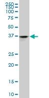 H00000127-M03A - Alcohol dehydrogenase 4 (ADH4)