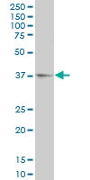 H00000128-A01 - Alcohol dehydrogenase 5 / ADH5