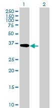 H00000128-B01P - Alcohol dehydrogenase 5 (ADH5)
