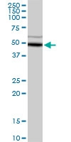 H00000128-D01P - Alcohol dehydrogenase 5 / ADH5