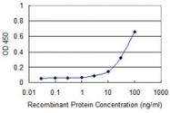 H00000132-M01 - Adenosine kinase