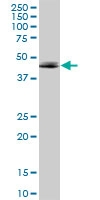 H00000135-B01 - Adenosine receptor A2a