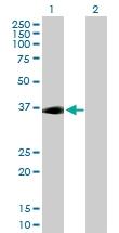 H00000135-B02P - Adenosine receptor A2a