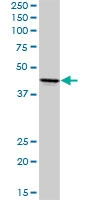 H00000135-D01P - Adenosine receptor A2a