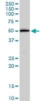 H00000154-D01 - Beta-2 adrenergic receptor