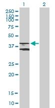 H00000155-B01P - Beta-3 adrenergic receptor