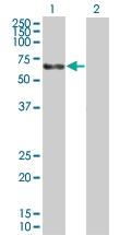 H00000174-B01 - Alpha-fetoprotein / AFP