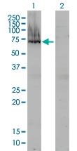 H00000174-M01 - Alpha-fetoprotein / AFP