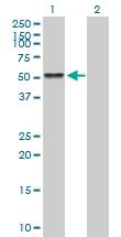 H00000183-B01P - Angiotensinogen