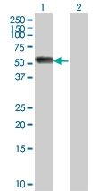 H00000183-D01P - Angiotensinogen