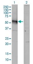 H00000183-M01 - Angiotensinogen