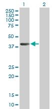 H00000191-B01P - AdoHcyase (AHCY)
