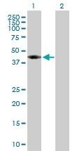 H00000191-D01P - AdoHcyase (AHCY)