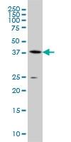H00000191-M07A - AdoHcyase / AHCY