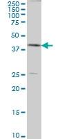 H00000191-M08A - AdoHcyase (AHCY)