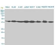 H00000191-M09 - AdoHcyase (AHCY)