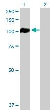 H00000196-D01P - Ah receptor / AhR