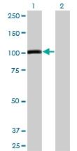 H00000196-M04 - Ah receptor / AhR