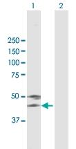 H00000197-B01 - Alpha-2-HS-glycoprotein / AHSG