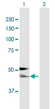 H00000197-B01P - Alpha-2-HS-glycoprotein / AHSG