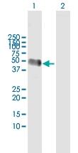 H00000197-D01 - Alpha-2-HS-glycoprotein / AHSG