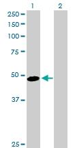 H00000197-D01P - Alpha-2-HS-glycoprotein / AHSG