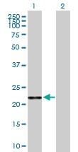 H00000203-B01 - Adenylate kinase 1 (AK1)