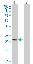 H00000203-D01P - Adenylate kinase 1 (AK1)