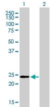 H00000203-M06 - Adenylate kinase 1 (AK1)
