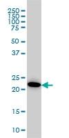 H00000203-M08 - Adenylate kinase 1 (AK1)