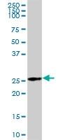 H00000205-B02P - Adenylate kinase 3 (AK3)