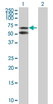 H00000213-D01P - Albumin