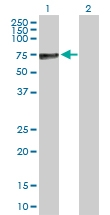 H00000250-D01P - Alkaline phosphatase / PLAP / ALPP