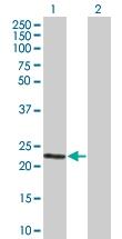 H00000265-B01 - Amelogenin