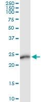 H00000265-D01 - Amelogenin