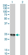 H00000265-M04 - Amelogenin