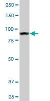 H00000271-M01 - AMP deaminase 2 / AMPD2