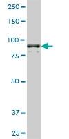 H00000271-M01A - AMP deaminase 2 / AMPD2