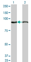 H00000271-M04 - AMP deaminase 2 / AMPD2